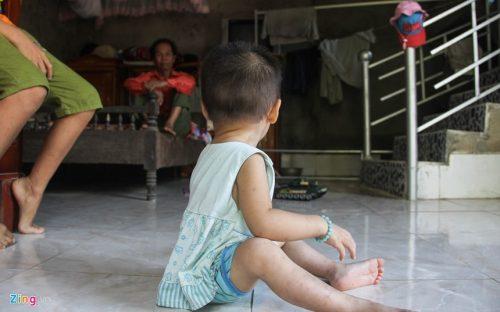 Mới 18 tháng tuổi bé Hoàng Thị Quỳnh đã phải gánh chịu căn bệnh thế kỷ