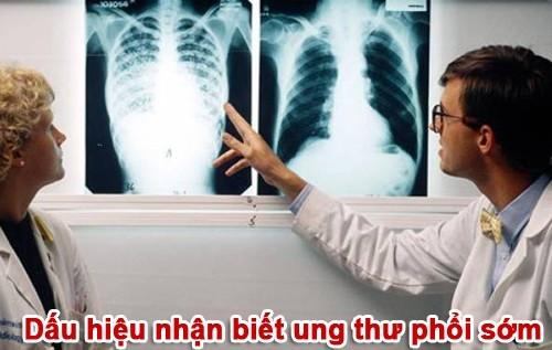 Một số dấu hiện nhận biết ung thư phổi sớm