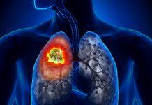 Cảnh báo: Những dấu hiệu nhận biết sớm ung thư phổi