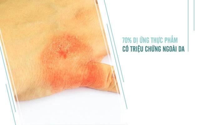 Đa phần dị ứng thức ăn có triệu chứng ngoài da
