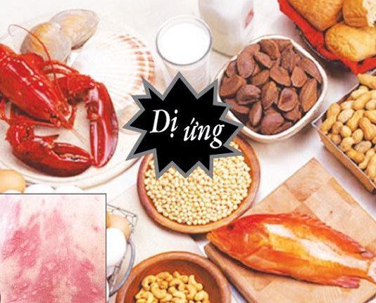 Cách nhận biết và phòng tránh dị ứng thức ăn